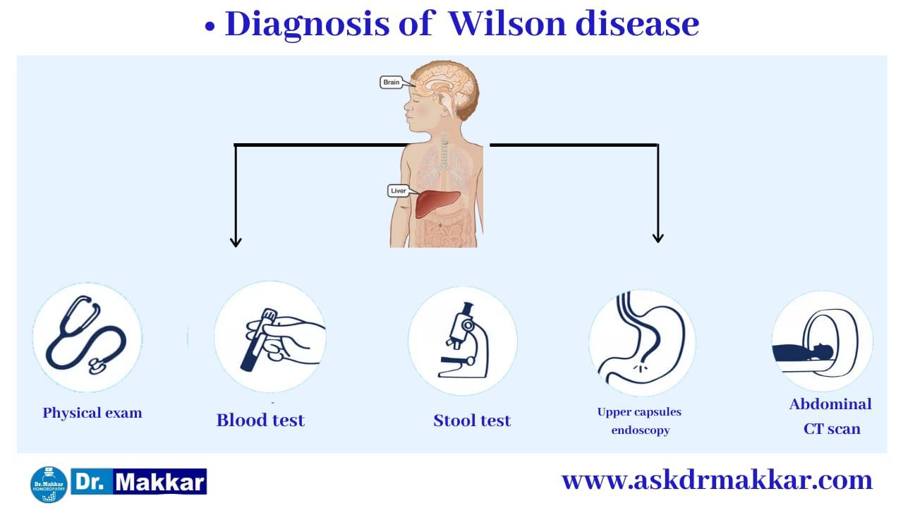 Diagnosis and investigations for Wilson Disease || विल्सन रोग  की मूल्यांकन  जाँच पड़ताल