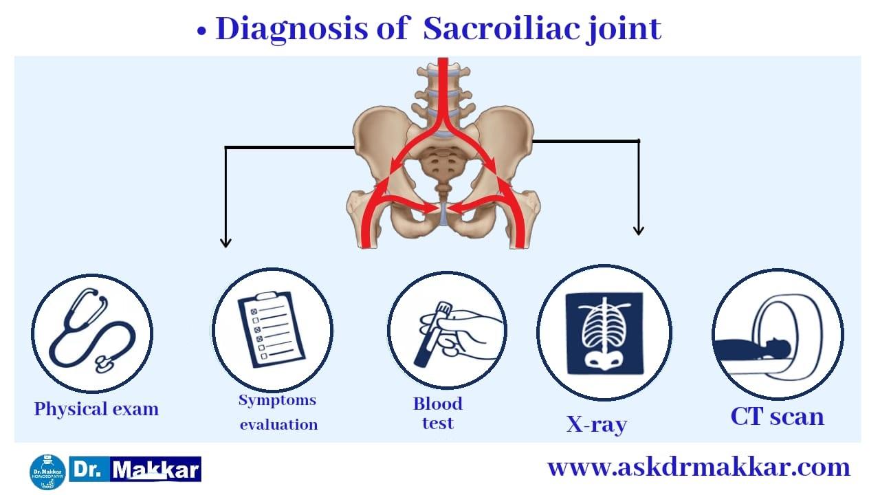 Diagnosis for  Sacroiliac Joint Dysfunction SI Joint Pain || सैक्रोइलियक संयुक्त रोग जोड़ों का दर्द का निदान