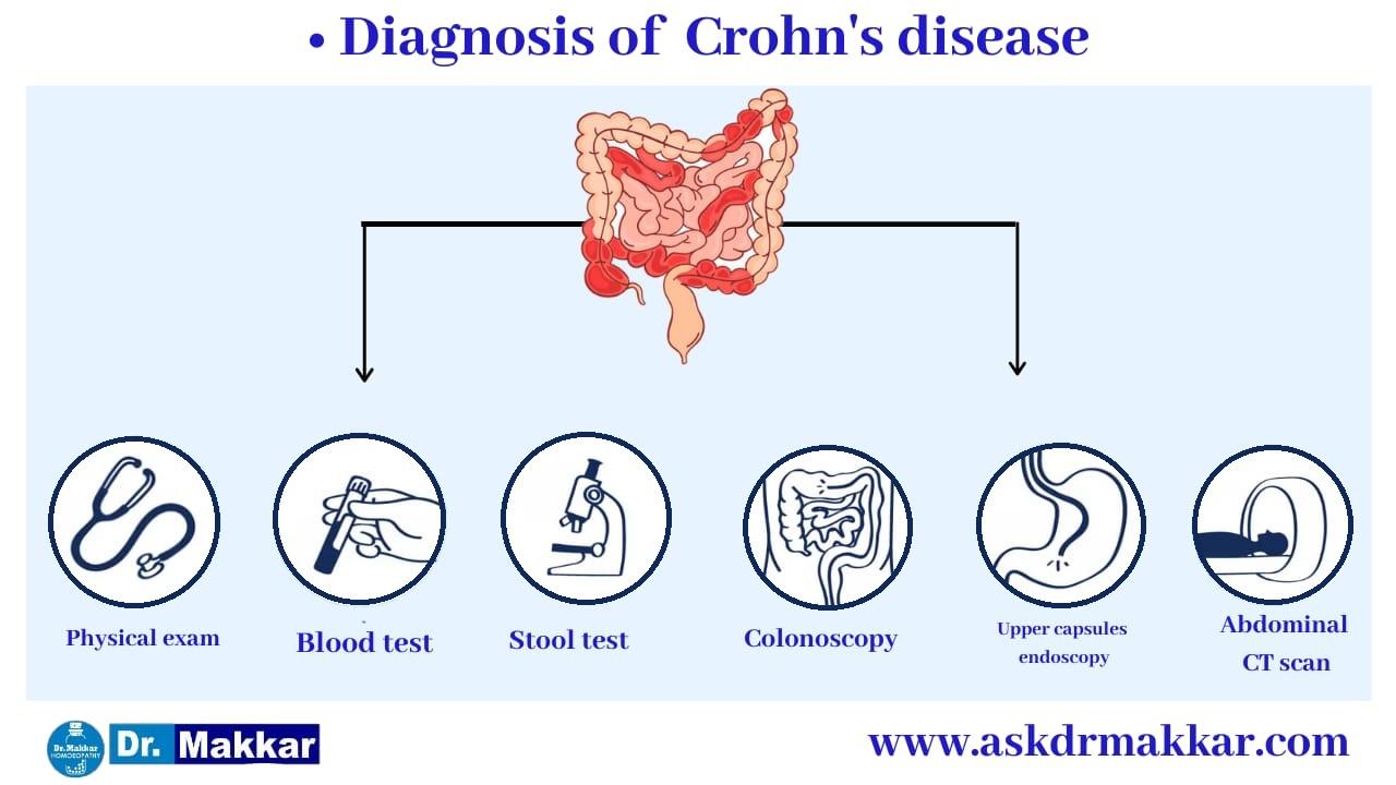 Diagnosis for Crohns Disease Inflammation of intestine    आंतों में सूजन  क्रोहन रोग का निदान