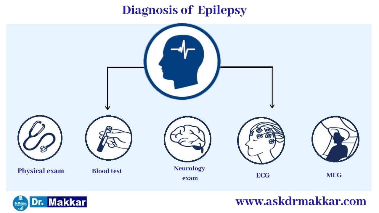 Diagnosis for Epilepsy seizure    मिर्गी का दौरा रोग का निदान