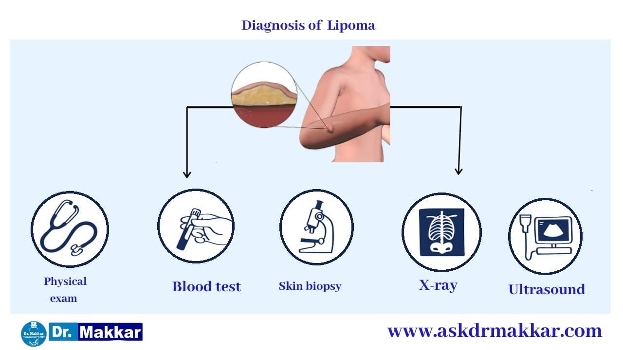 Diagnosis for Lipoma Benign Tumour under skin || चर्बी की गांठ लिपोमा का निदान