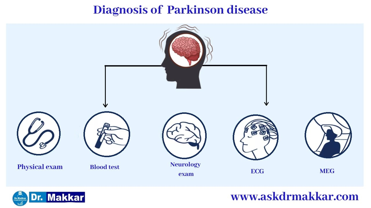 Diagnosis for Parkinson Disease || पार्किंसन डिजीज तंत्रिका तंत्र का निदान
