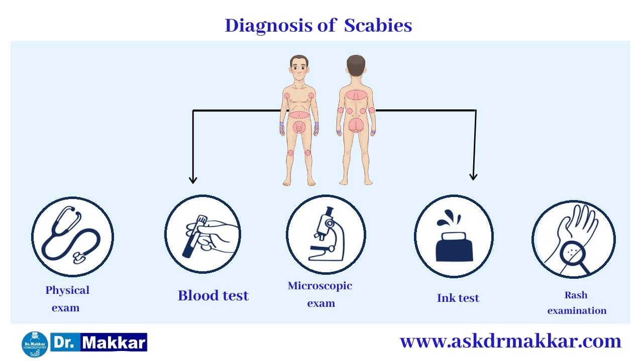 Diagnosis for Scabies || स्केबीज या खाज का निदान