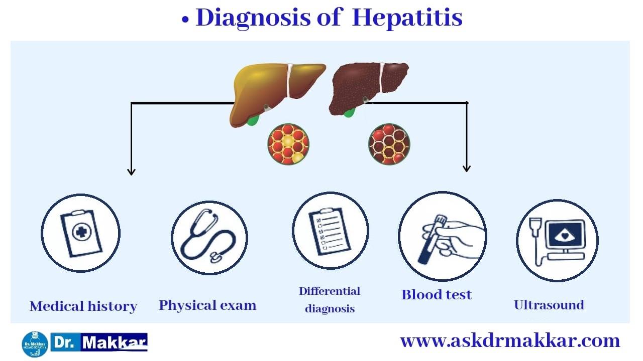 Diagnosis for Hepatitis B HBV || यकृतशोथ ख (हेपाटाइटिस बी) हेपाटाइटिस बी वायरस (HBV)  रोग का निदान