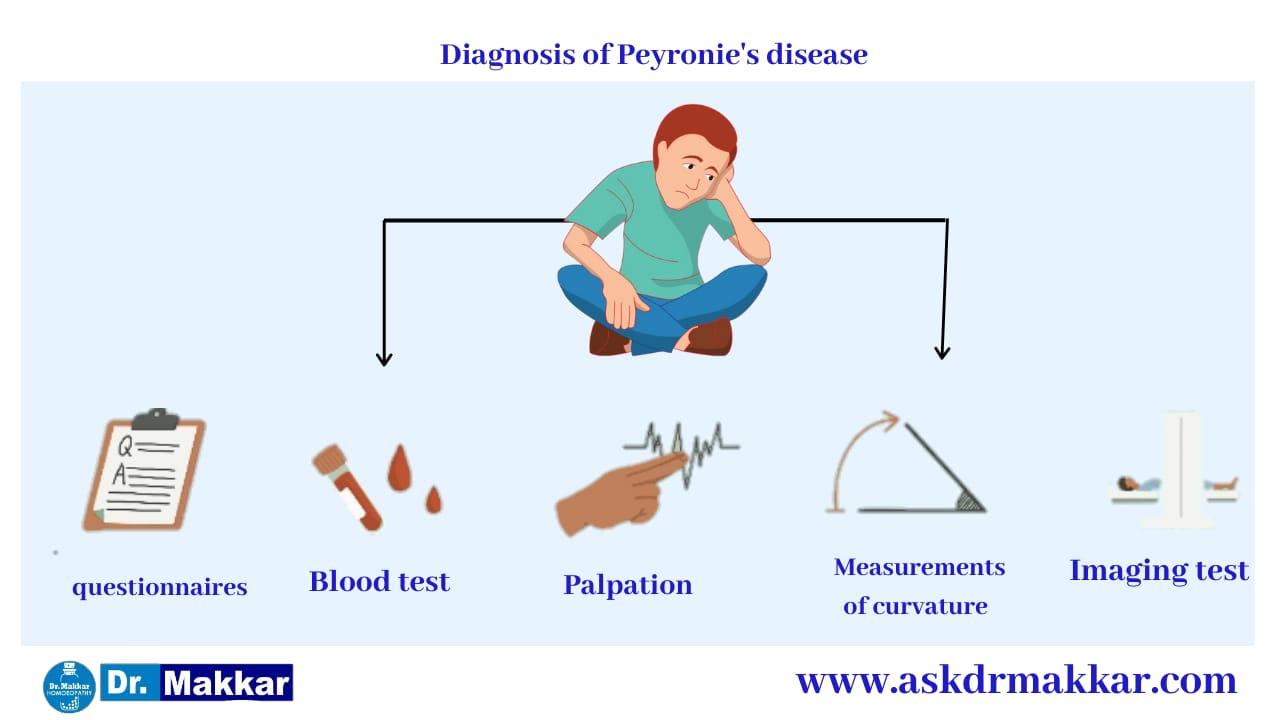 Diagnosis of Peyronies disease curved Penis  पेयरोनी डिजीजलिंग का टेढ़ापन मुंडा लिंग रोग रोग का निर्णय करना