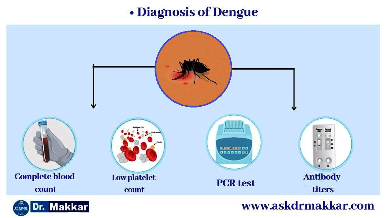 Diagnosis of dengue || डेंगू फीवर और डेंगू टेस्ट्स