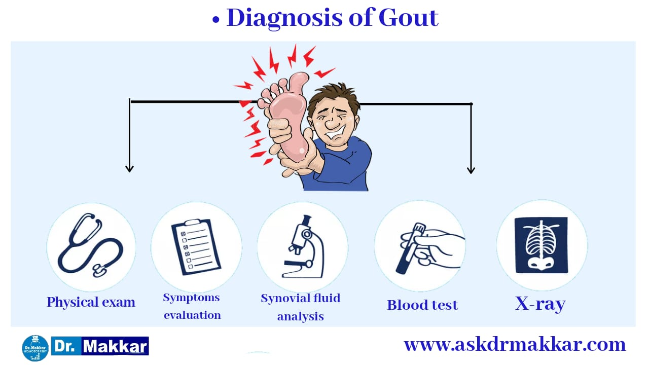 Diagnosis of gout Uric acid
