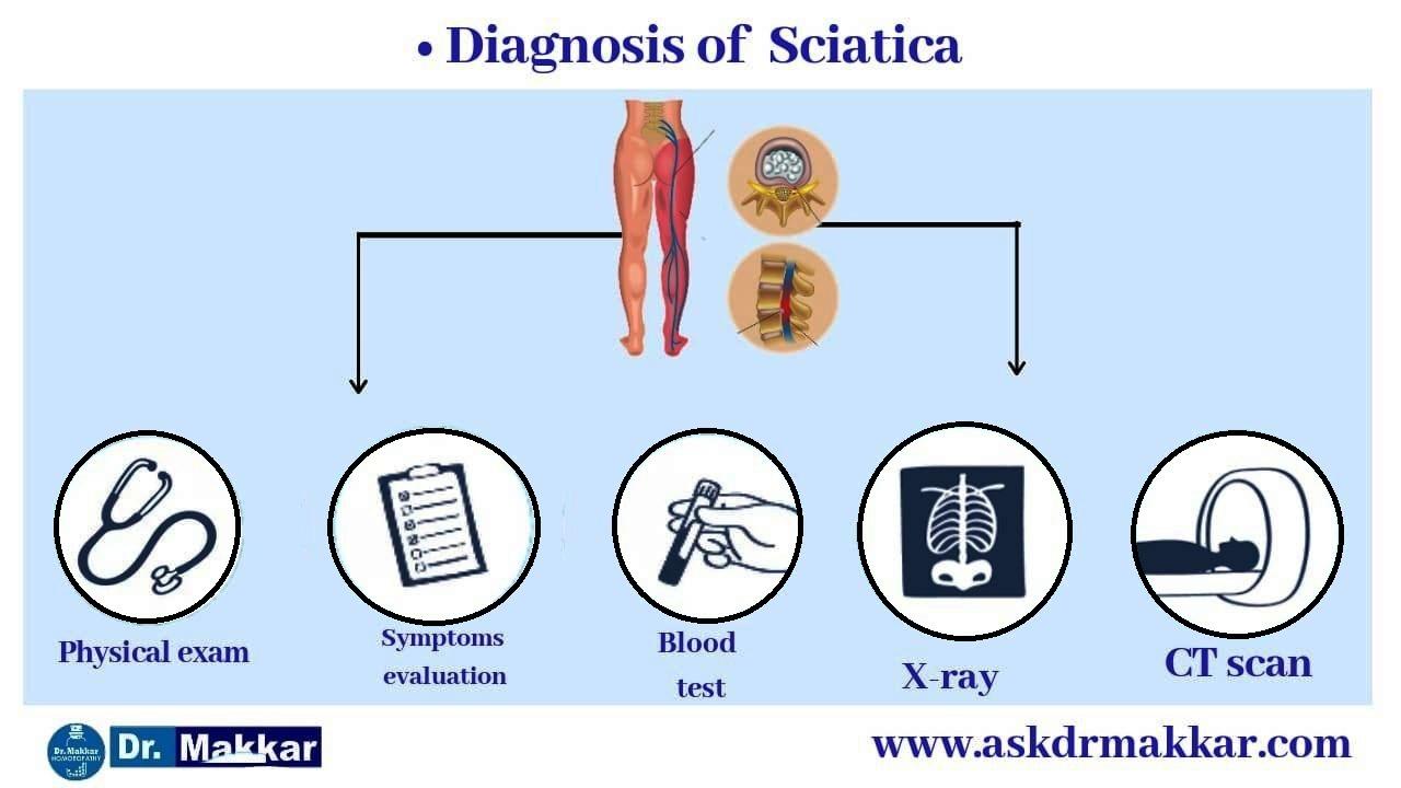 Diagnosis of Sciatica lumber Rediculopathy Diagnosisof sciatica || साइटिका  कटिस्नायुशूल का निदान:
