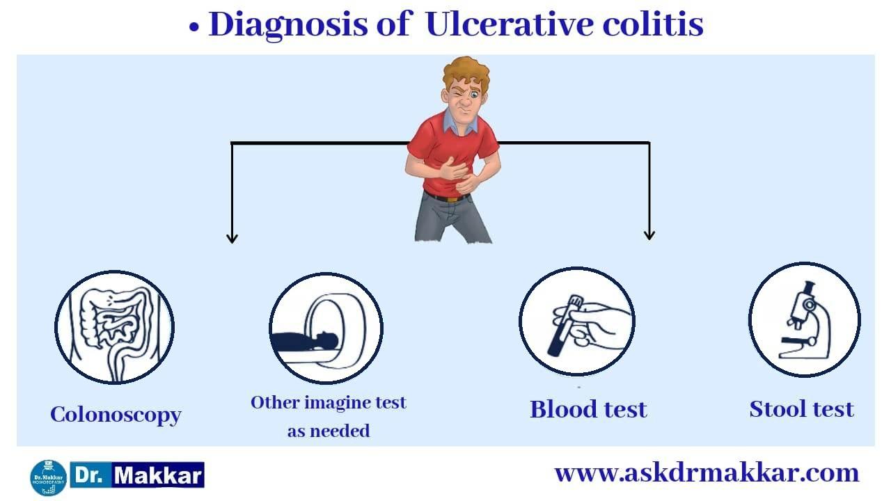 Diagnosis of ulcerative colitis || आंतों में सूजन अल्सरेटिव कोलाइटिस मूल्यांकन आंत में सूजन कैसे होत