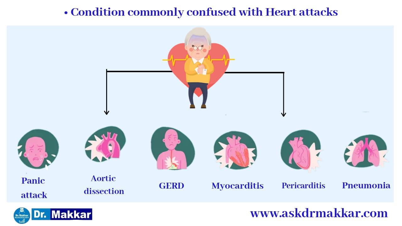 Differential diagnoses for Heart Attack || हार्ट अटैक या  दिल की बीमारी विभेदक क्रमानुसार रोग निदान