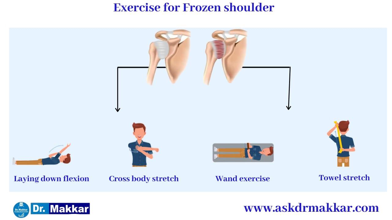 Exercises as Self care measures exercises Frozen Shoulder stiffness of shoulder    कंधे की अकड़न फ्रोज़न शोल्डर में सूजन व्यायाम