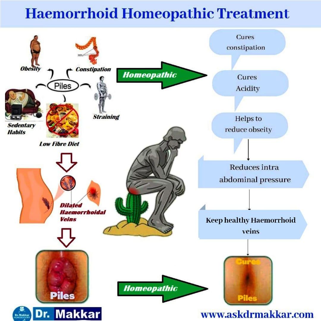Best Homeopathic Treatment for different types of  Piles Haemorrhoids    विभिन्न प्रकार के पाइल्स बवासीर  के लिए सर्वश्रेष्ठ होम्योपैथिक उपचार  के साथ से होम्योपैथिक ट्रीटमेंट