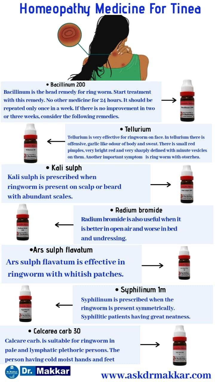 Homeopathic medicine for tinea