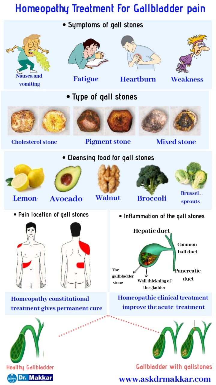 Homeopathic treatment for Gallstone Cholelithiasis