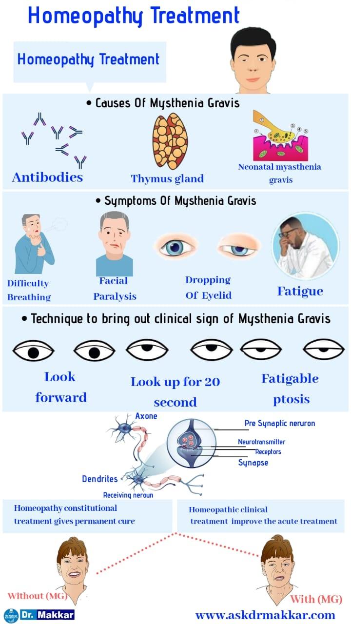 Homeopathic treatment for Mysthenia Gravis