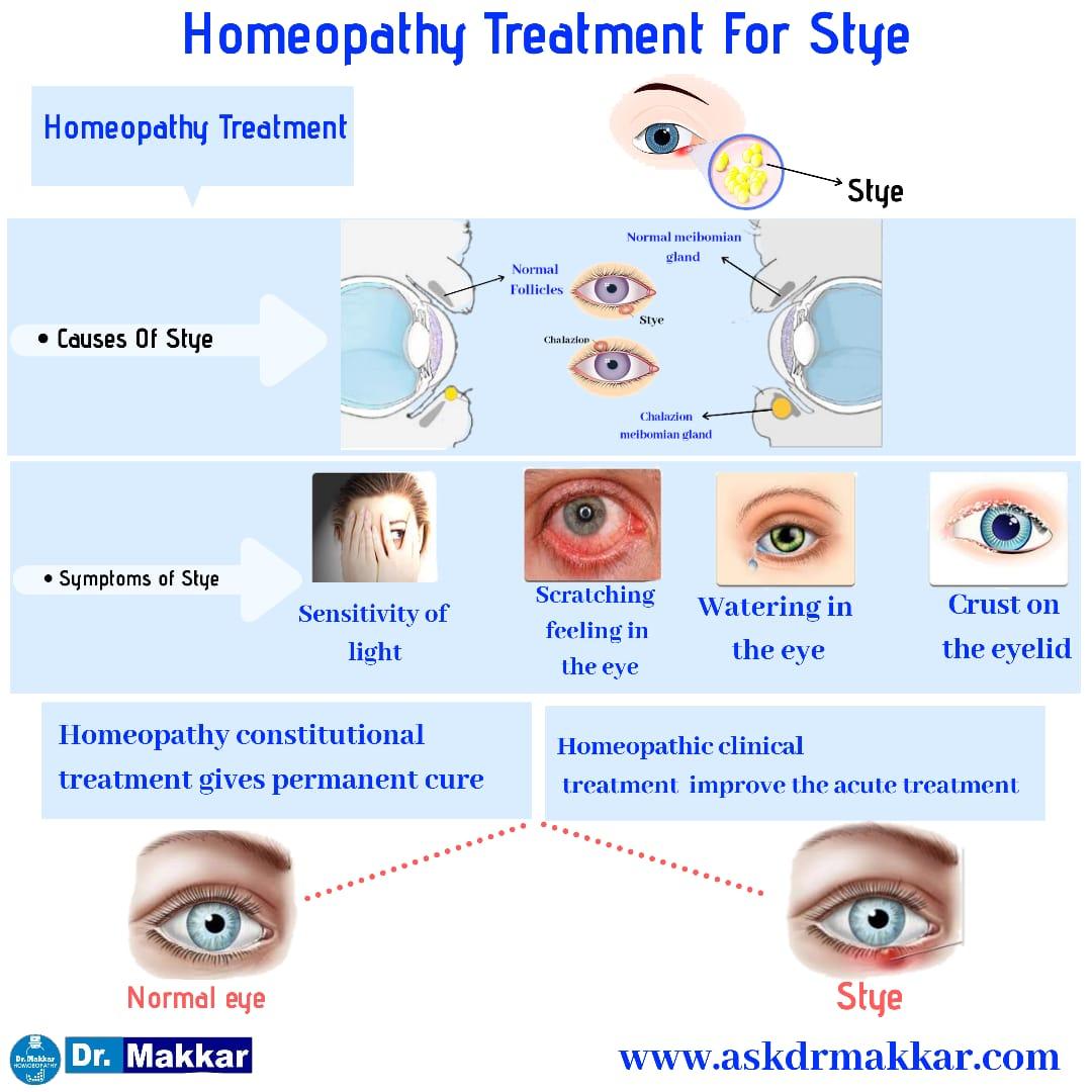 Homeopathic treatment of stye Chalazion