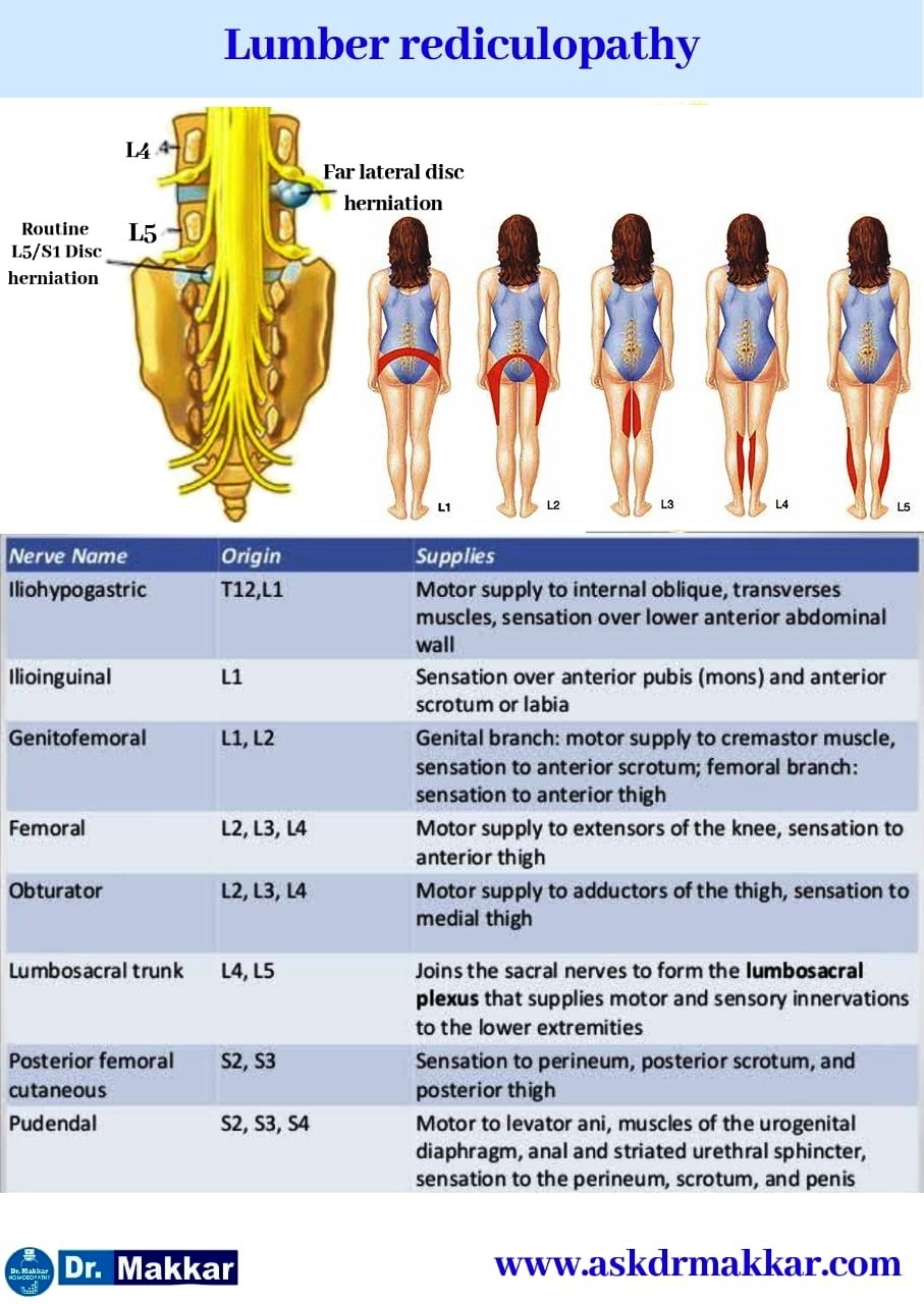 Lumber rediculopathy root nerve supply compression of nerve root effect on Part of body Supplied Lumber rediculopathy root nerve supply compression of nerve root effect on Part of body Supplied  || शरीर के अंग पर तंत्रिका जड़ प्रभाव के लंबर रेडिकुलोपैथी रूट साइटिका तंत्रिका आपूर्ति संपीड़न