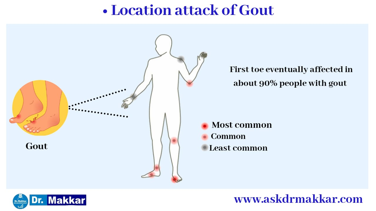 Parts of Body effected by Uric acid Gout