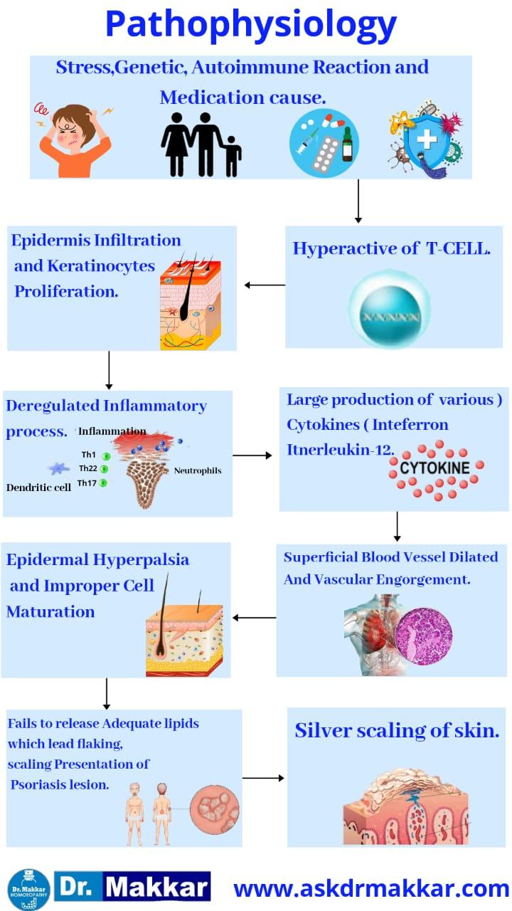 Pathophysiology of psoriasis