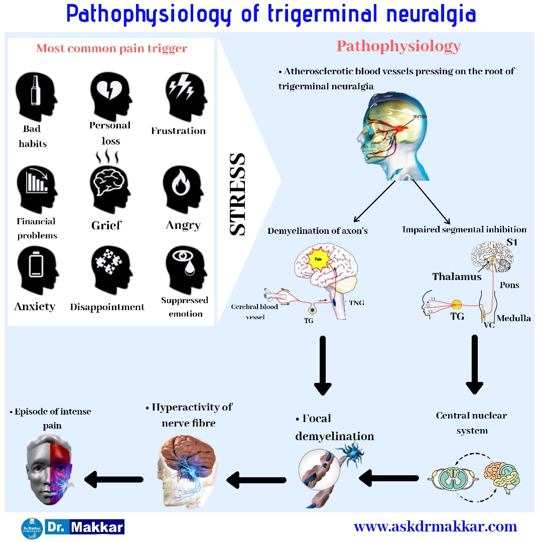 Pathophysiology of trigerminal neuralgia