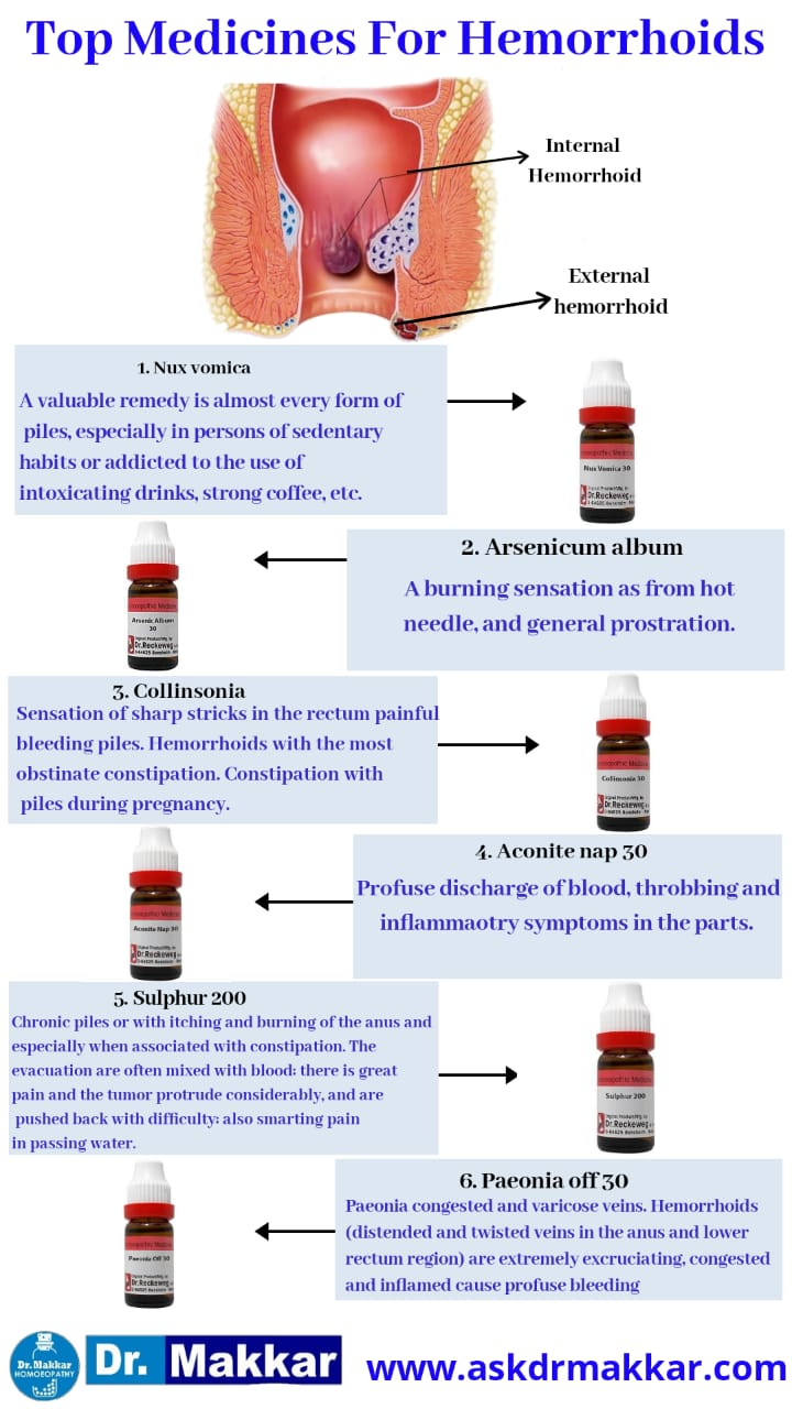 Top medicine for Piles Homeopathic medicines haemorrhoids