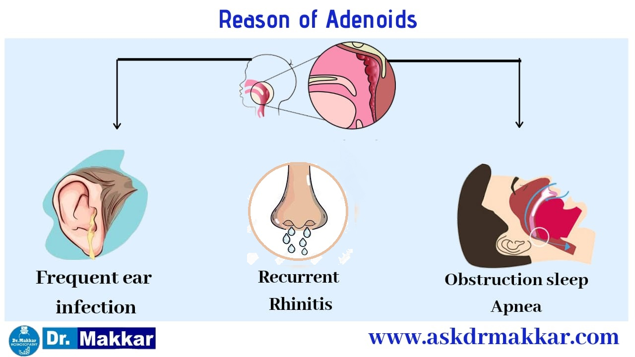 Reason of adenoid development in childrens