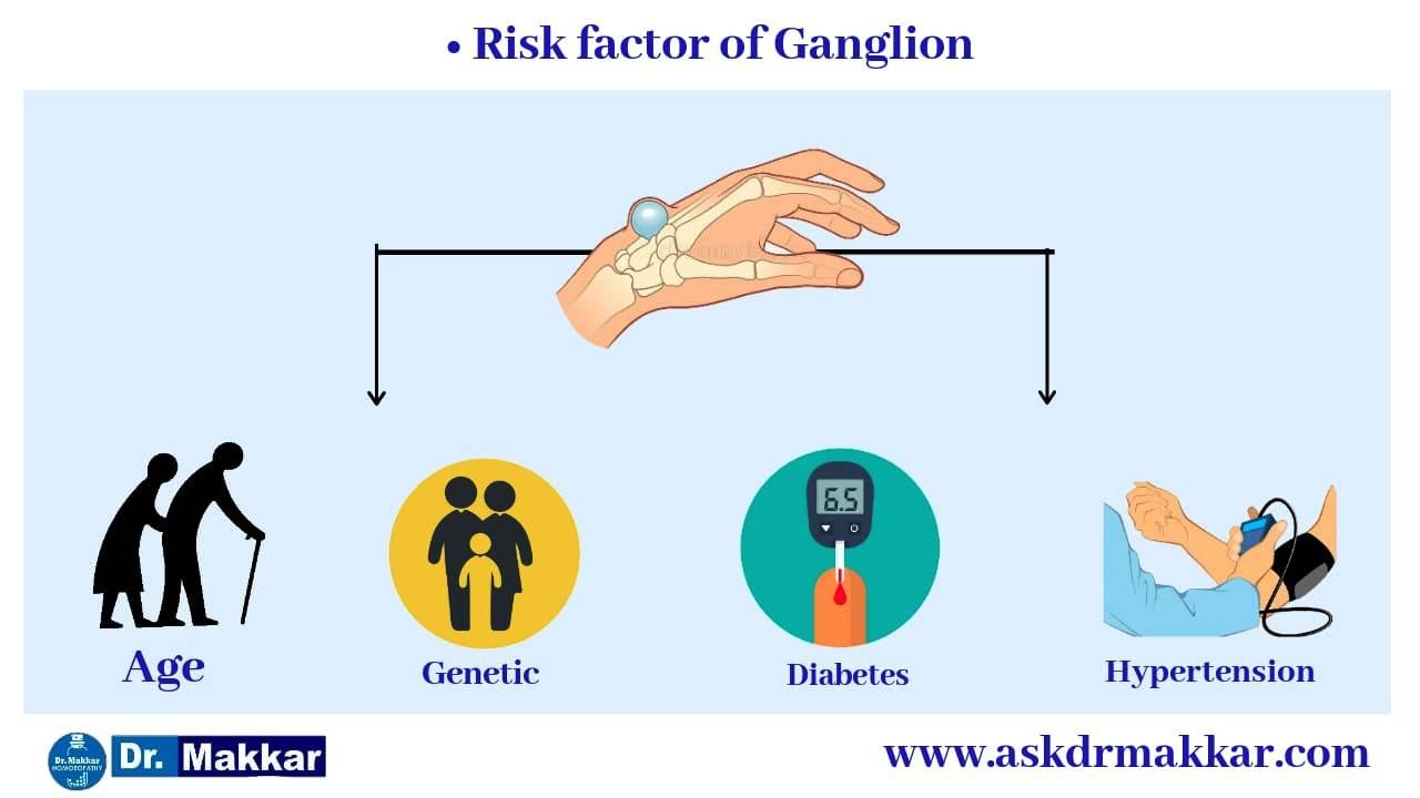 Risk factors for Ganglion wrist  ||  नाड़ीग्रन्थि गांठ गांठ के जोखिम कारक