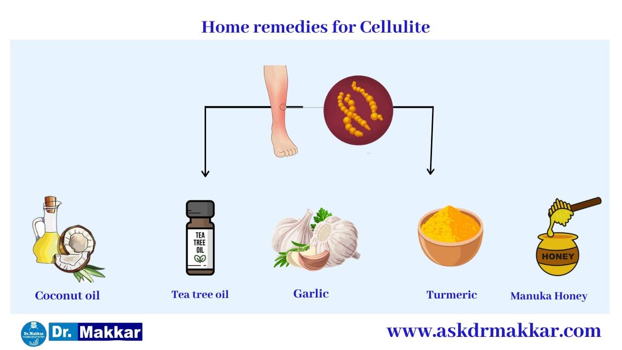 Self Care Home based Remedies Measure to tackle Cellulitis Skin Infection   सेल्फ केयर होम आधारित उपचार सेल्यूलाइटिस स्किन इंफेक्शन रीज़न  निपटने के उपाय