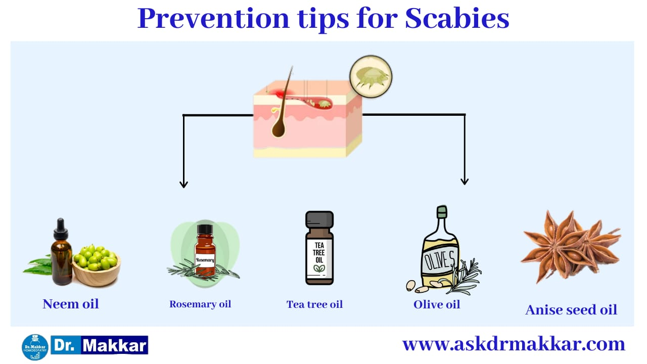 Self Care Home based Remedies Measure to tackle Scabies || स्केबीज या खाज  सेल्फ केयर होम आधारित उपचार स्केबीज या खाज  निपटने के उपाय