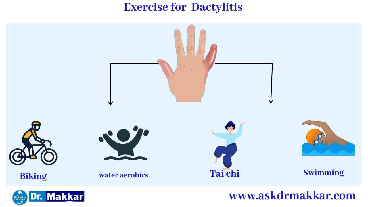 Self care Measure Dactylitis    Swelling in Digits Toes Fingers    डिप्रेशन से बचने के उपाय     हाथ पैरों की सूजन से छुटकारा