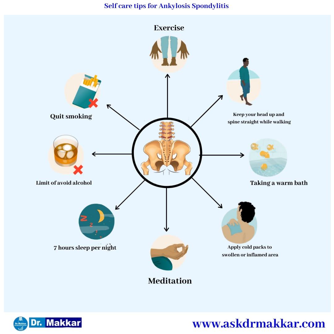 Self care measure excercises for Ankylosis in hindi video || हिंदी में एंकिलोसिस के लिए स्व देखभाल उपाय शारीरिक व्यायाम