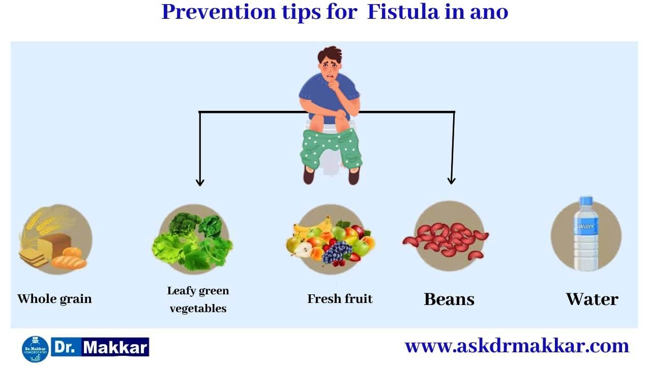 Self care measure in Fistula in ano also called fissure in ano  || भगन्दर एनल फिस्टुला में सेल्फ केयर माप को जड़ से खत्म करने के उपाय