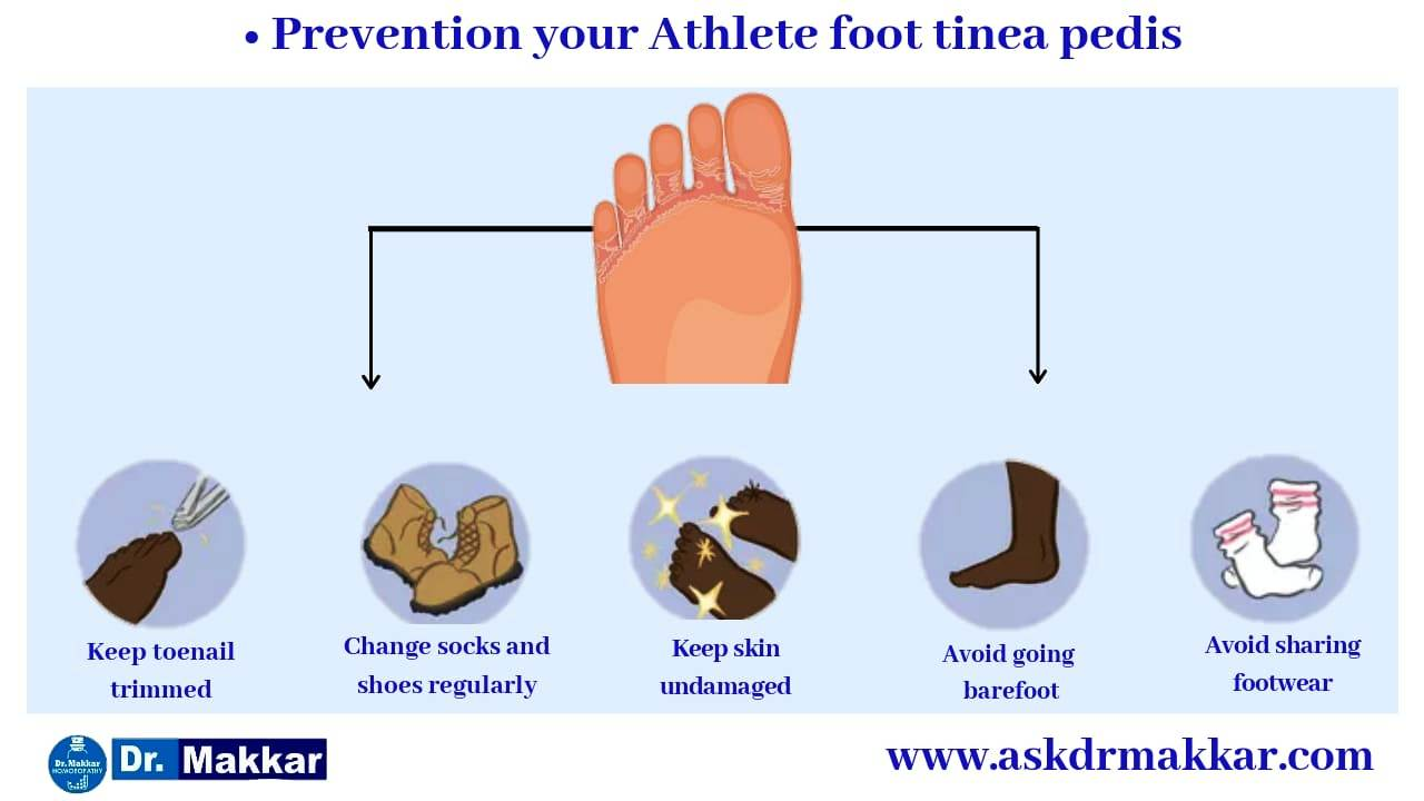 Self care measure in tinea pedis or athlete feet || टिनिया पेडिस या एथलीट फीट में सेल्फ केयर माप को जड़ से खत्म करने के उपाय