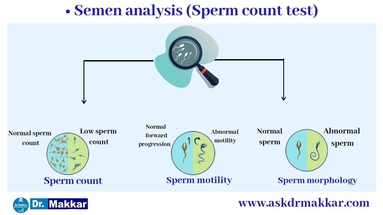 Semen count semen analysis निल स्पर्म काउंट ट्रीटमेंट एज़ोस्पर्मिया शुक्राणु का मूल्यांकन