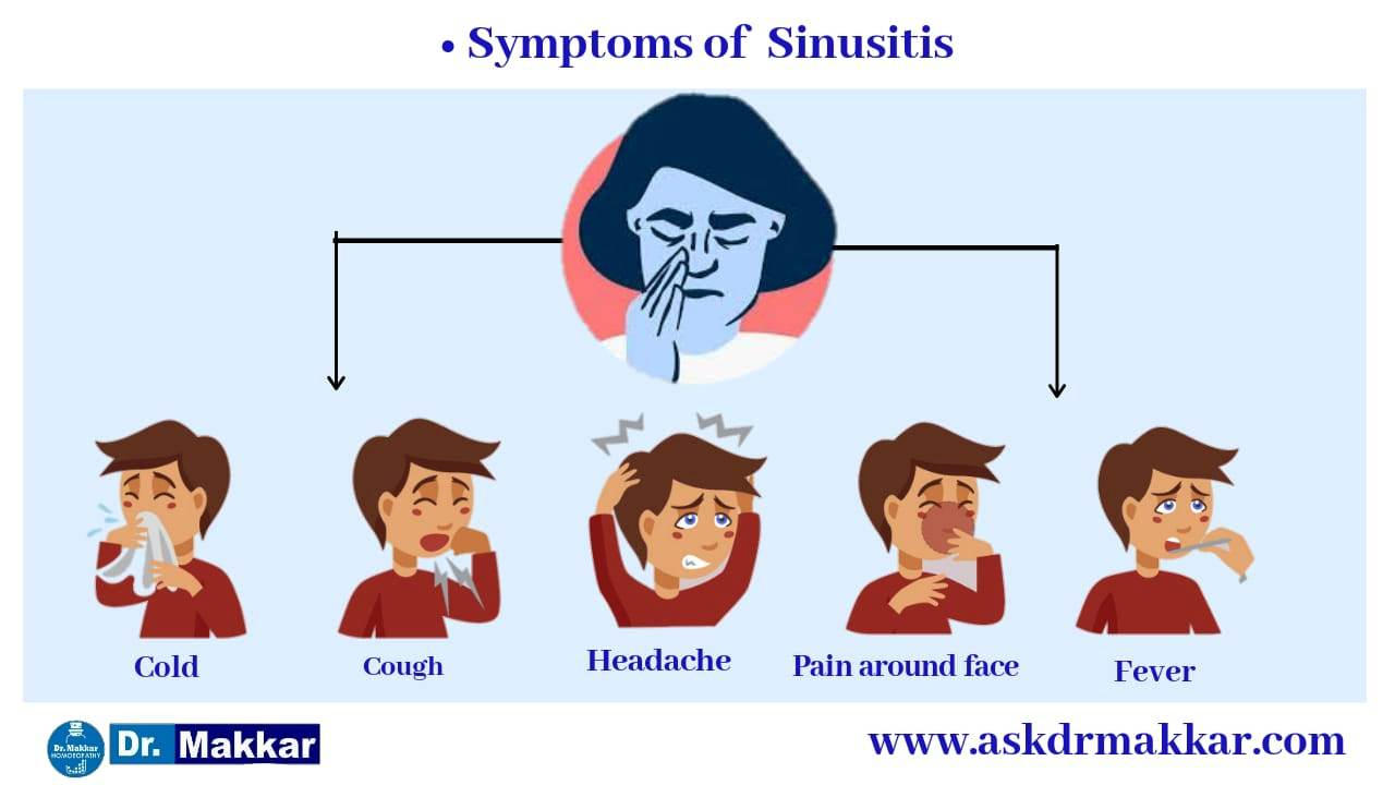 Sinusitis symptoms  Right diagnosis on basis of symptoms  approach helps to cure for Sinusitis