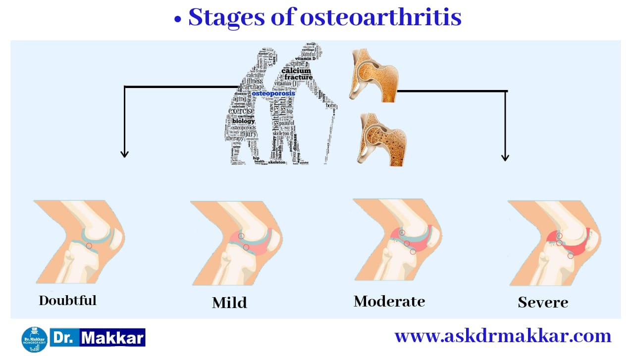 Stage for Osteoarthritis