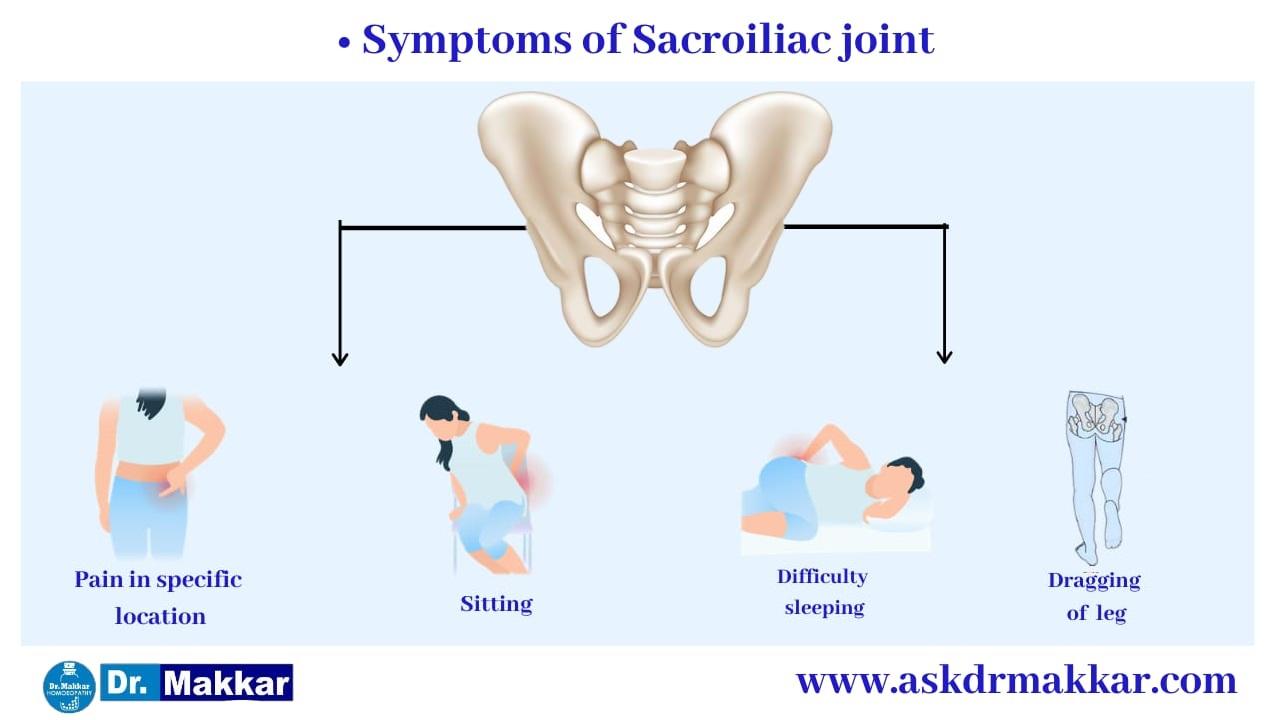 Symptoms of   Sacroiliac Joint Dysfunction SI Joint Pain || सैक्रोइलियक संयुक्त रोग जोड़ों का दर्द  के लक्षण