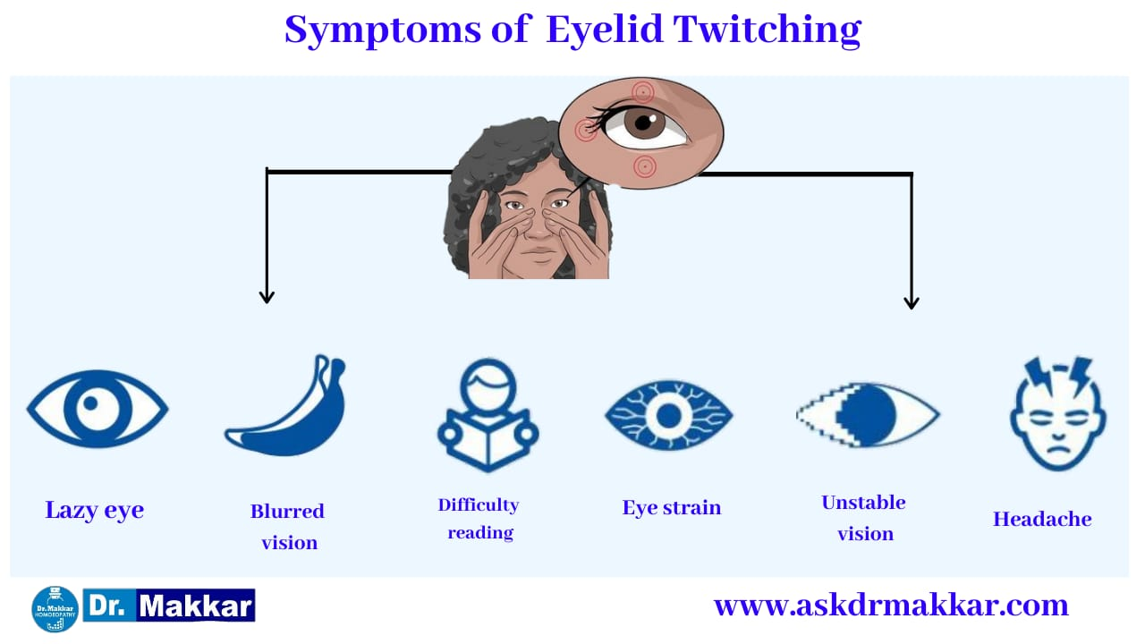 Symptoms of  Blepharospasm Twitching eyelid || ब्लेफरोस्पाज्म आंख फड़कने झपकना के लक्षण