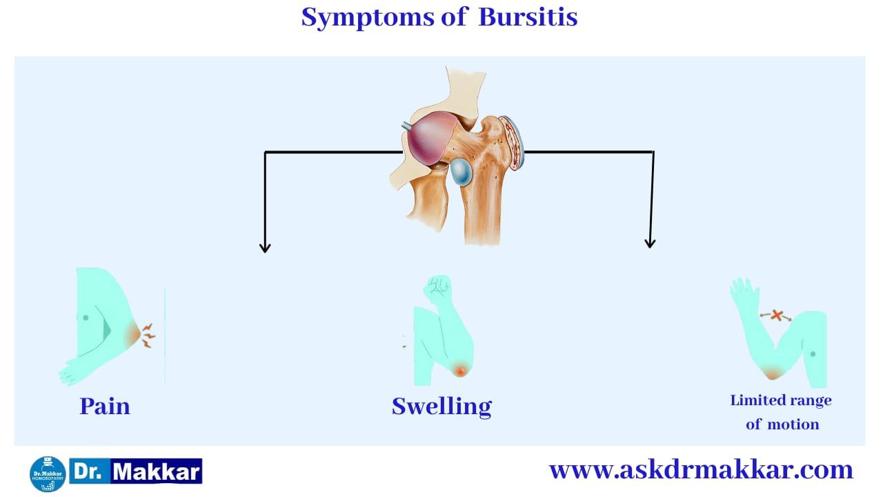 Symptoms of  Bursitis    बर्साइटिस के लक्षण