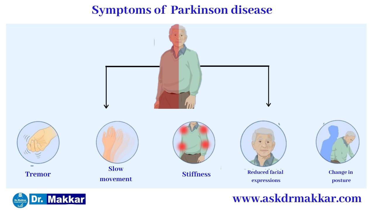 Symptoms of  Parkinson Disease || पार्किंसन डिजीज तंत्रिका तंत्र के लक्षण