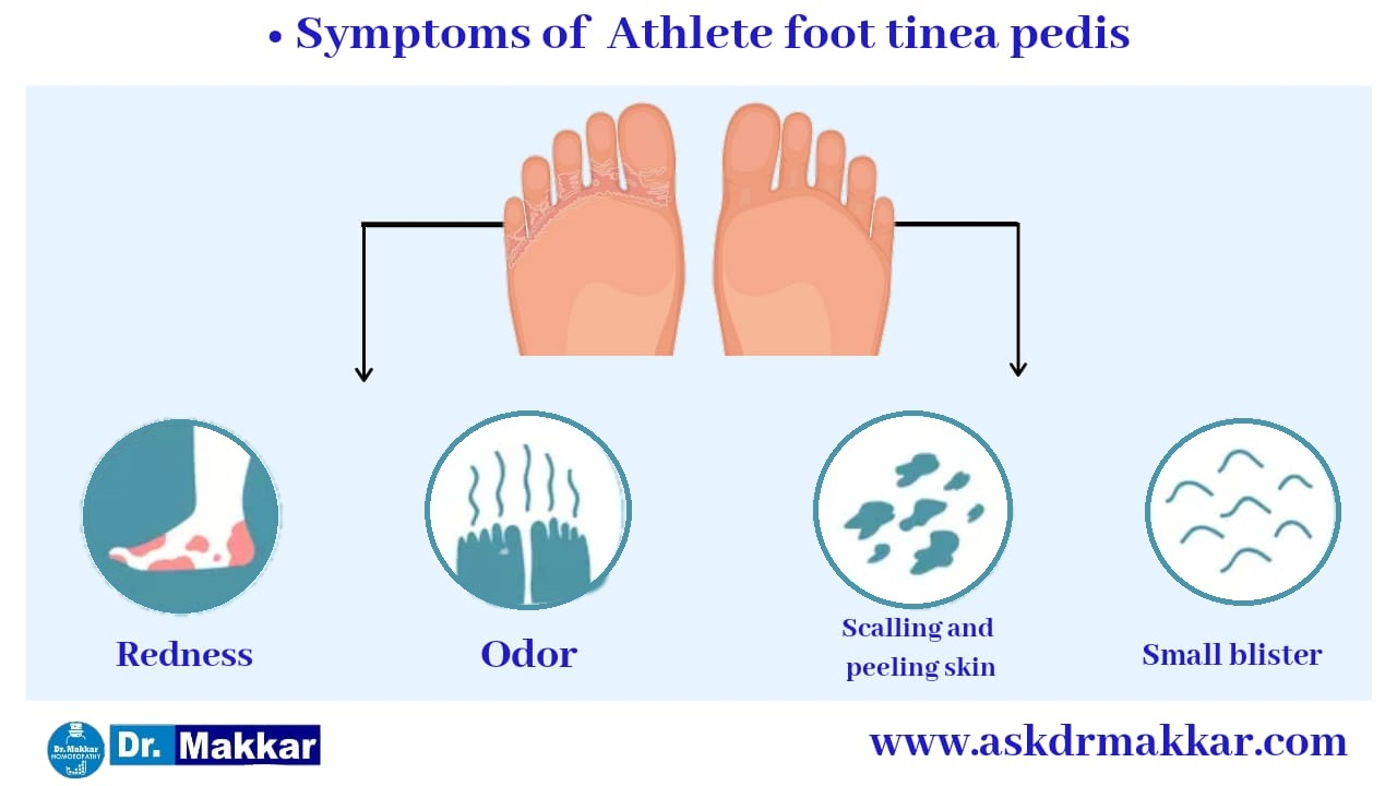 Symptoms of Athlete foot Tinea pedis || एथलीट फुट टीनिया पेडिस के लक्षण