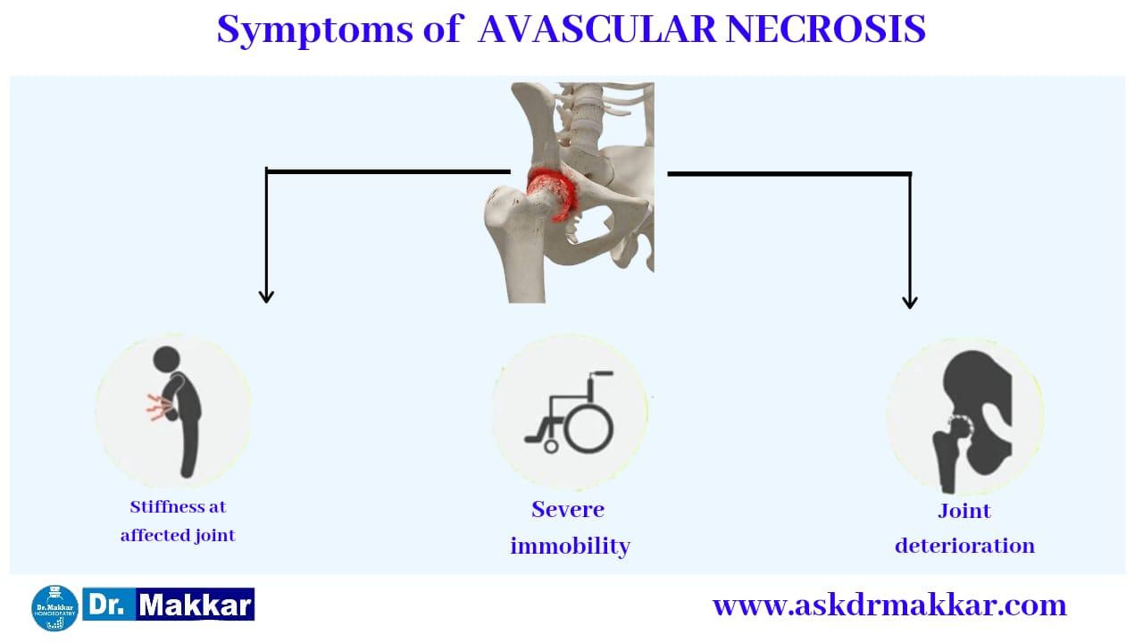 Symptoms of Avascular Ischemic Necrosis AVN Osteonecrosis femur || एवस्कुलर इस्केमिक नेक्रोसिस एवीएन ओस्टियोनेक्रोसिस फीमर हड्डी के लक्षण