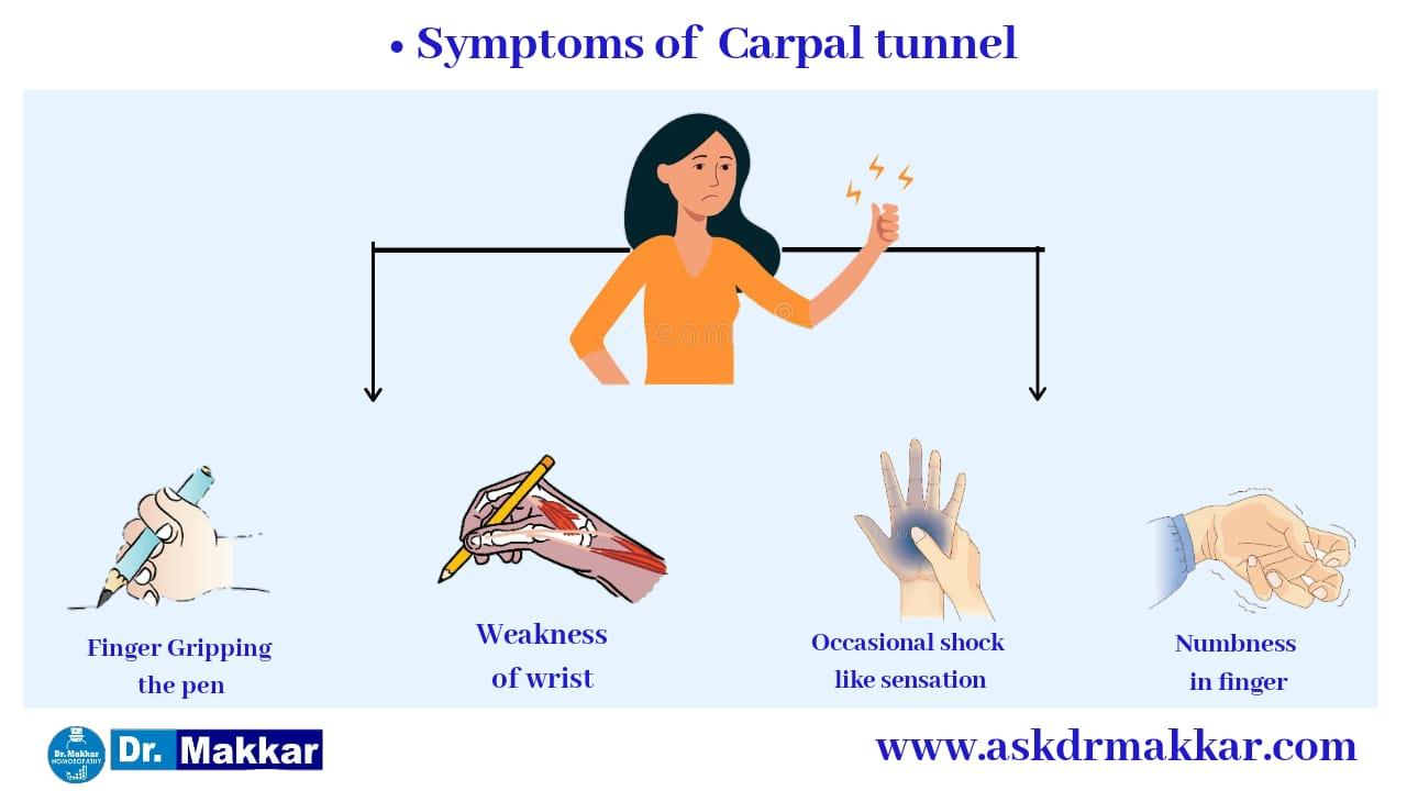 Symptoms of Carpal tunnel syndrome || कार्पल टनल सिंड्रोम के लक्षण