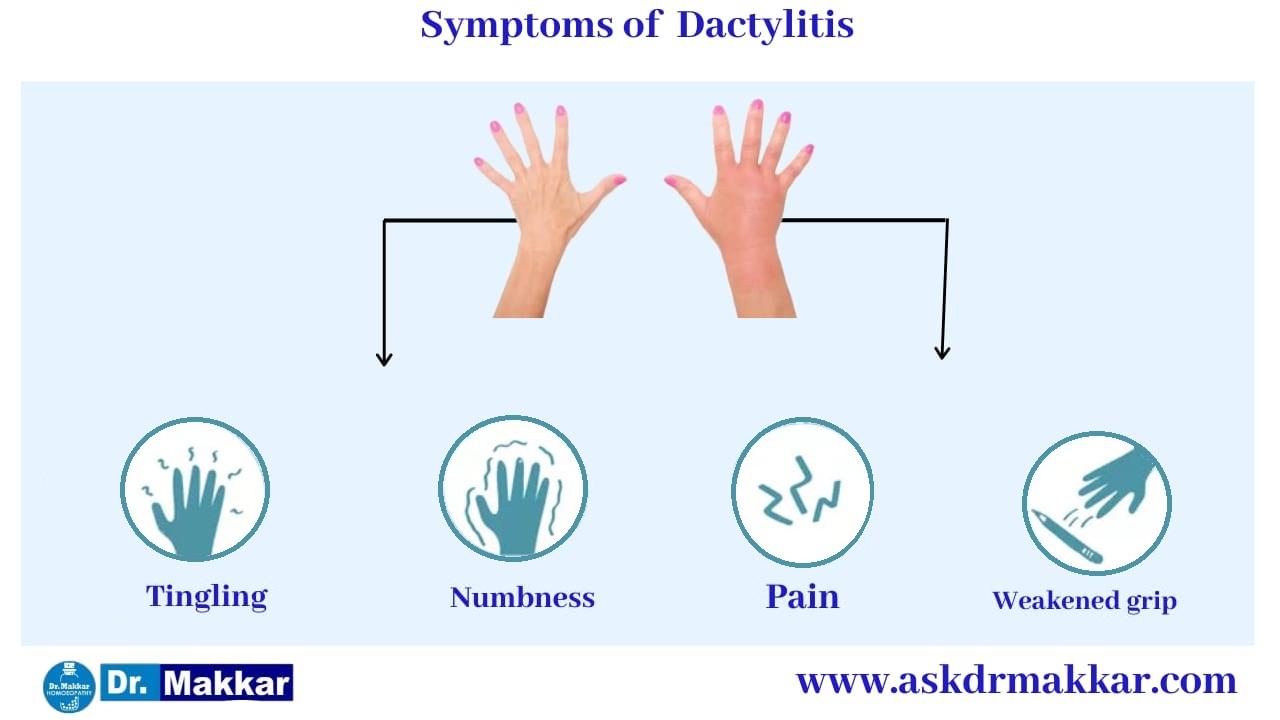 Symptoms of Dactylitis Swelling in Toes & Fingers    डक्टाइलिटिस के लक्षण हाथ पैरों की सूजन
