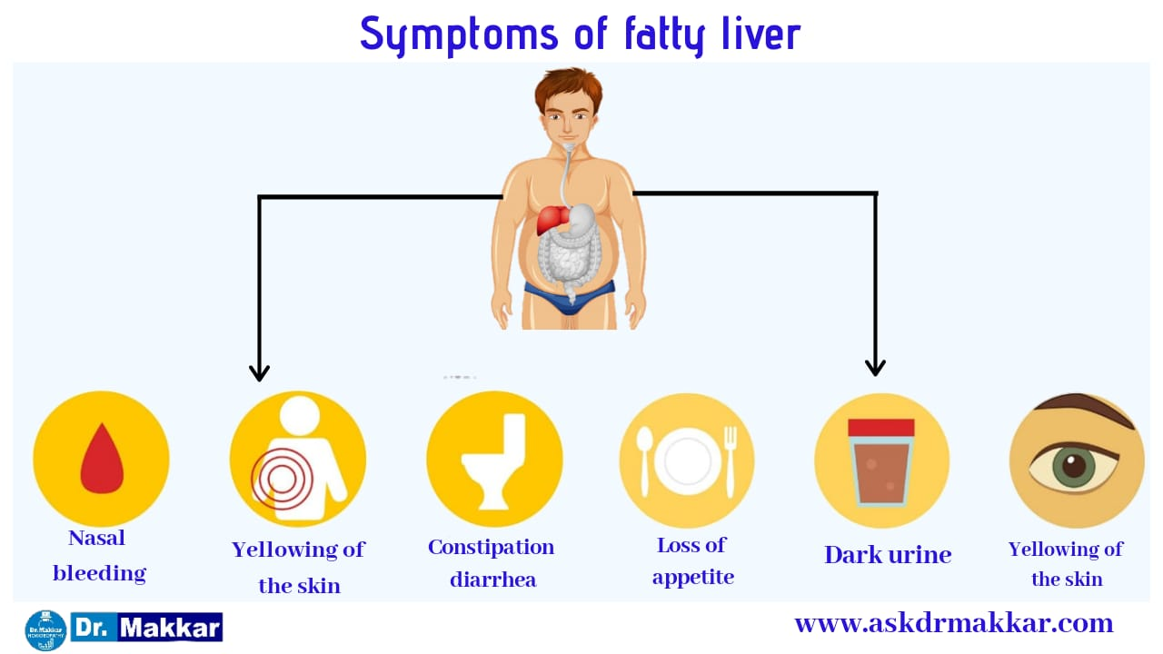 Symptoms of Fatty Liver in detail