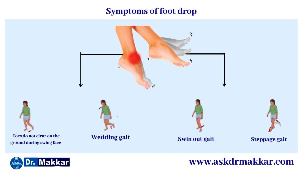Symptoms of Foot Drop Peroneal Nerve || फुट ड्राँप अनुजंघास्थिक तंत्रिका के लक्षण