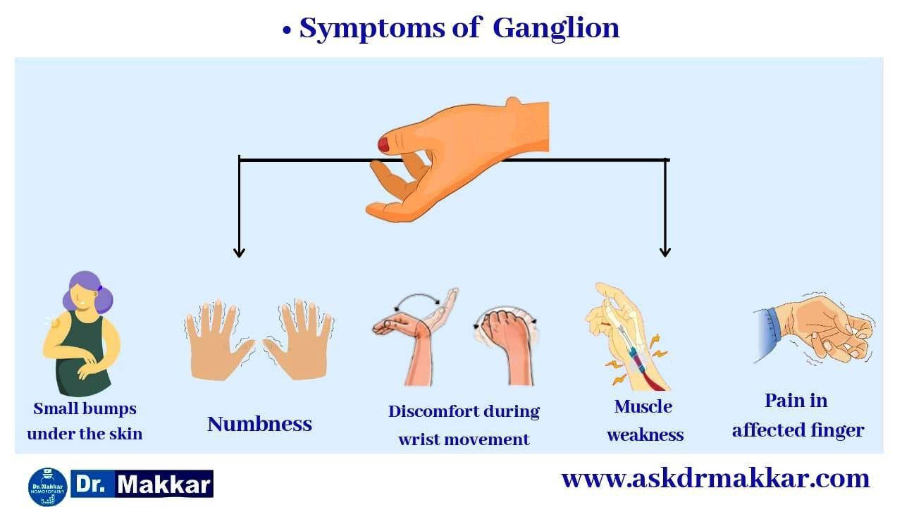 Symptoms of Ganglion Cyst  ||  नाड़ीग्रन्थि गांठ गांठ के लक्षण