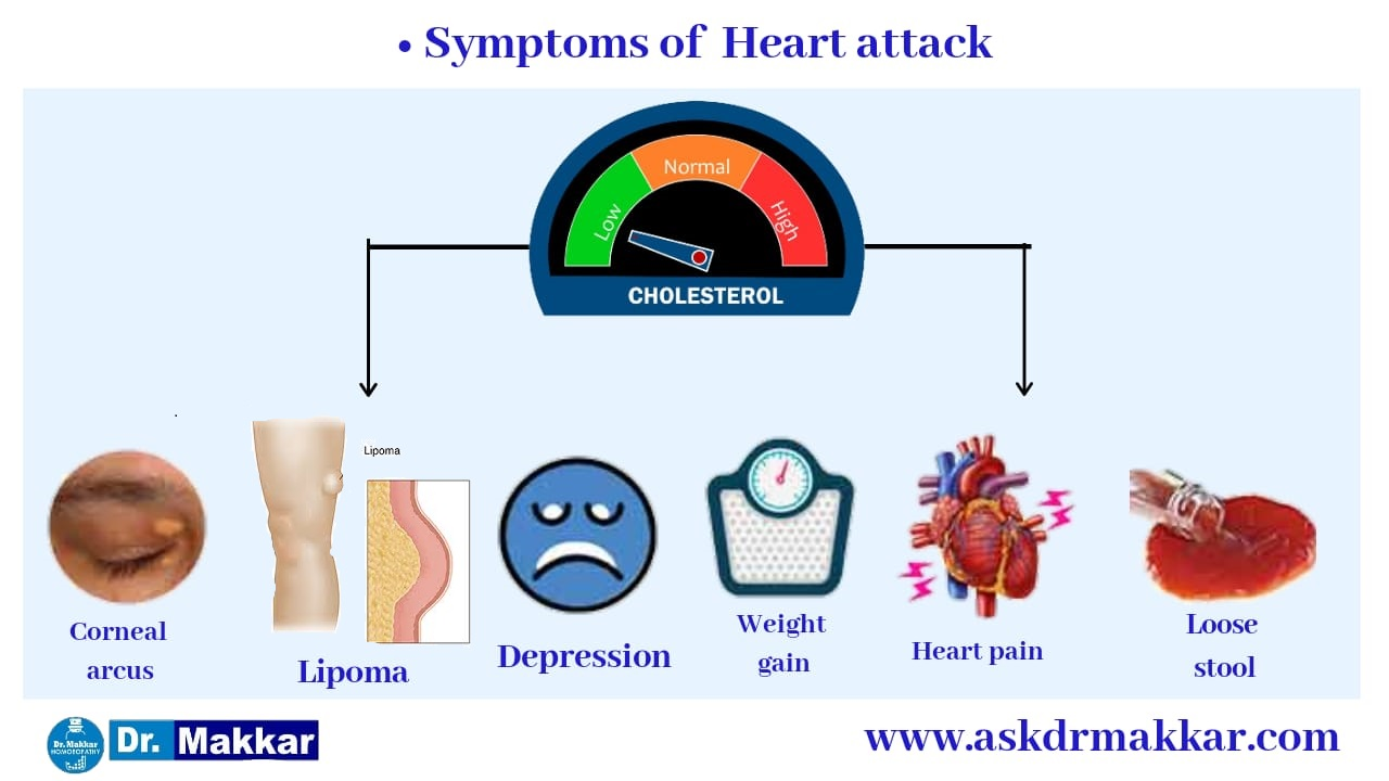 Symptoms of High Cholestrol also called Hyperlipidaemia   हाई कोलेस्ट्रोल या हाइपरलिपिडिमिया  के लक्षण