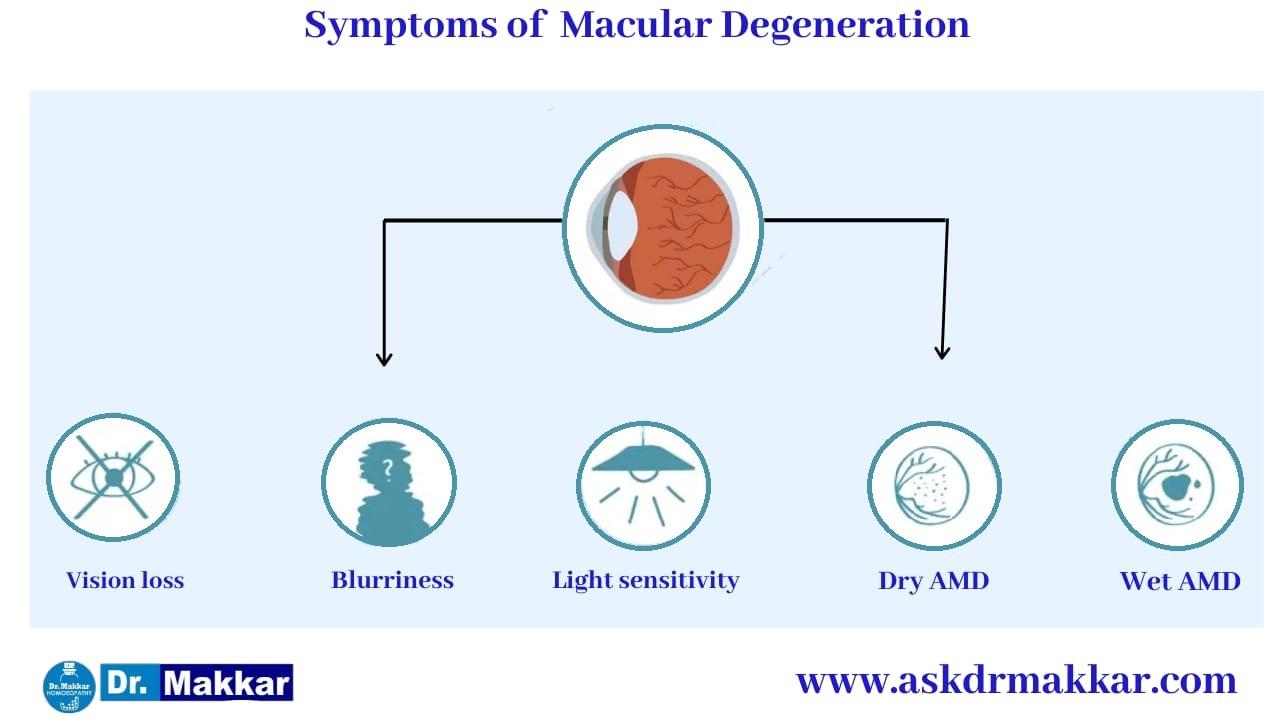 Symptoms of Macular degeneration ARMD || मैक्युलर डीजेनेरेशन के लक्षण