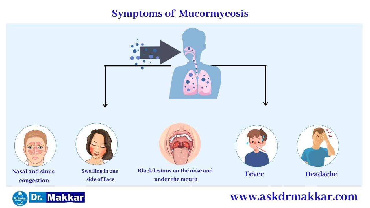 Symptoms of Mucormycosis || Black Fungus || Zygomycosis ||  ब्लैक फंगस के लक्षण